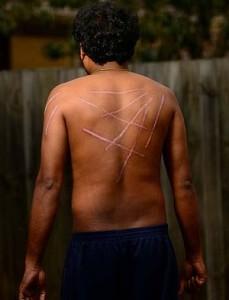 Tamil aslyum seeker 'Kumar' shows his wounds.