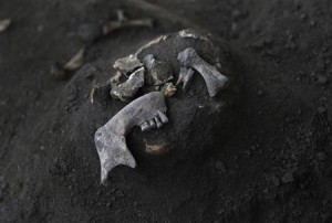 Fragments of a human skull are seen at a construction site in the former war zone in Mannar