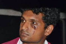 Sri Lanka: AHS undergraduate activists assaulted in custody and hospitalised; Academics condemn.