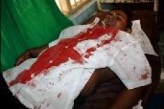 Jaffna  UNI Student Union Secretary attacked