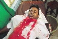 Who attacked Dharsanandh of Jaffna Uni?