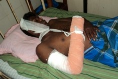 Tamil youth tortured by security forces in Jaffna