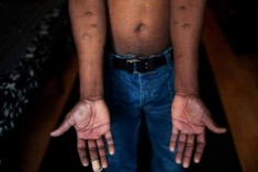Sri Lanka Report to UN Committee Against Torture Is In a Denial Mode – AHRC