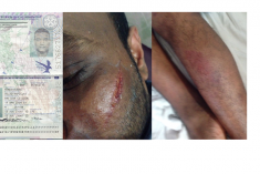 British Citizen Tortured and Under Arbitrary Detention in Sri Lanka